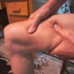 Learn how to massage your knee and leg pain away!