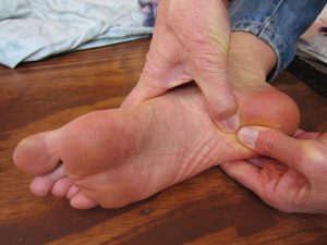 Learn how to heal your heel spur naturally!